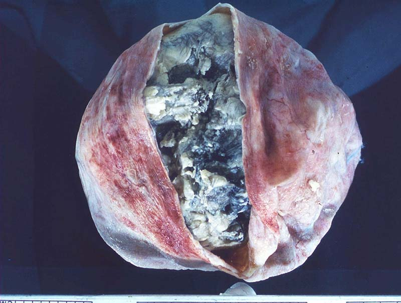 Malady of the Month Archives - Dermoid Cyst