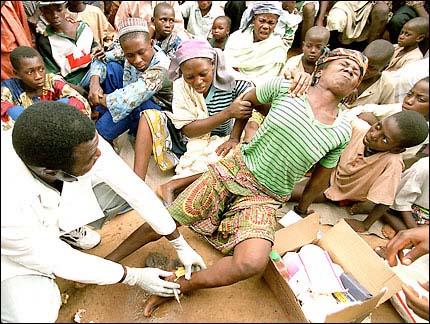 مرض طفيلي  (  دودة غينيا  ) بالصور